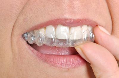 Eine Aufbiss-Schiene verhindert den Abrieb der Zahnhartsubstanz durch Knirschen.