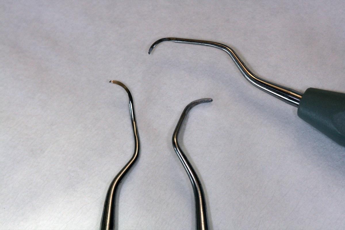 Kürettenspitzen, verschiedene Winkel für die verschiedenen Zahnformen