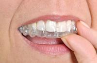 Aufbiss-Schiene zur Stabilsierung gelockerter Zähne