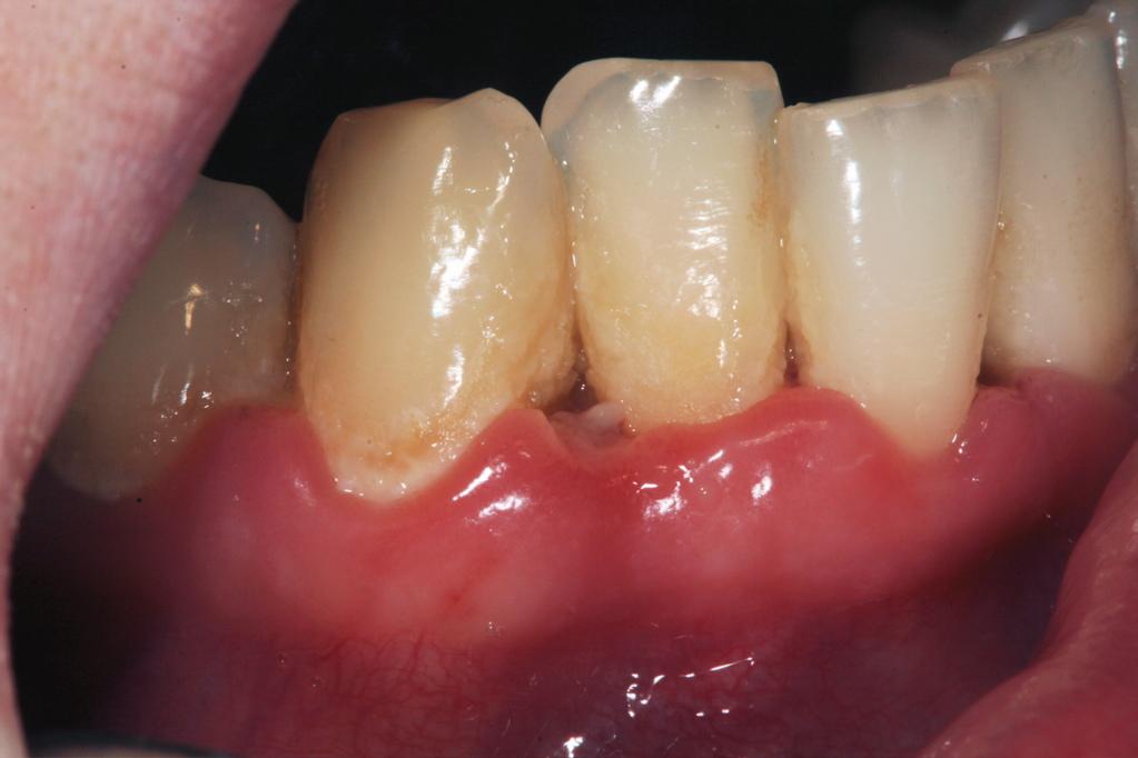 Chronische Parodontitis:entzündete Zahnfleischpapillen manchmal einziger Hinweis