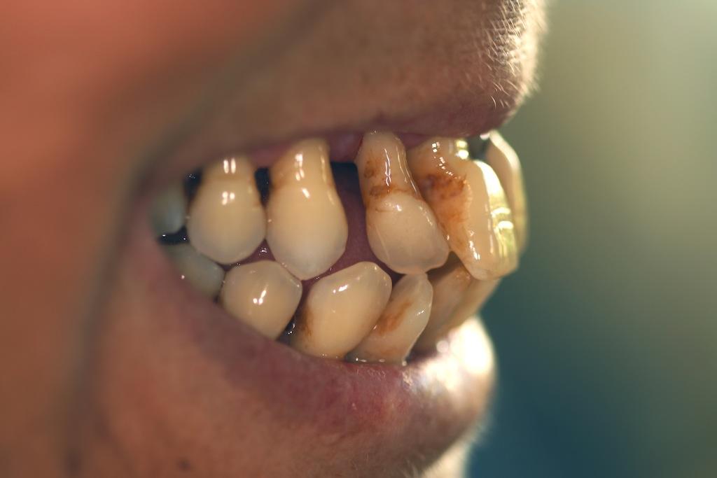 Generelle Rezessionen infolge einer Parodontitis