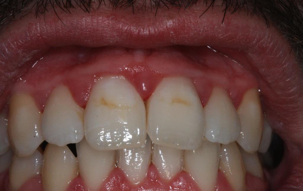 generalisrete Entzündung des Zahnfleischs