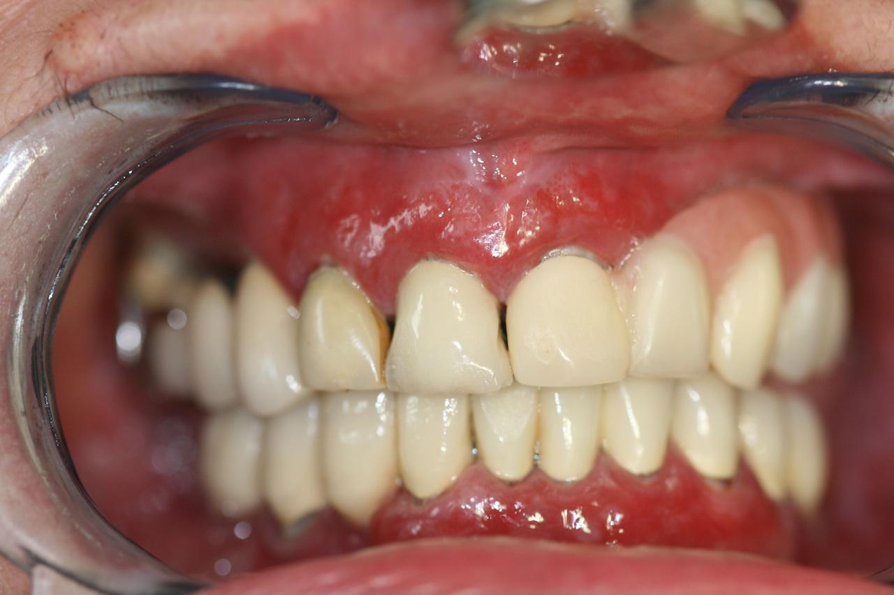 Generalisierte Zahnfleischentzündung durch Lichen planus