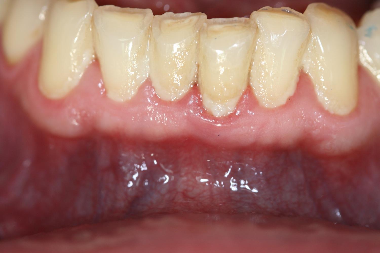 Zahnplaque: schädliche Bakterienkolonien