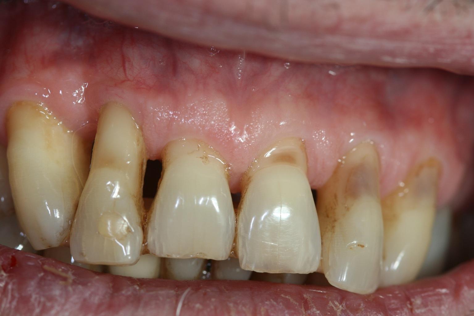 Parodontitis mit Attachementverust und Rezessionen
