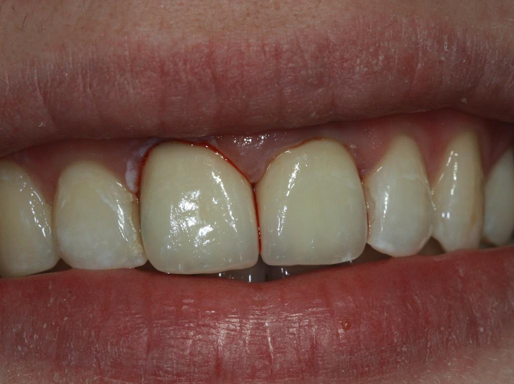 Entzündetes Zahnfleisch: geschwollen, düster-rot und leicht blutend