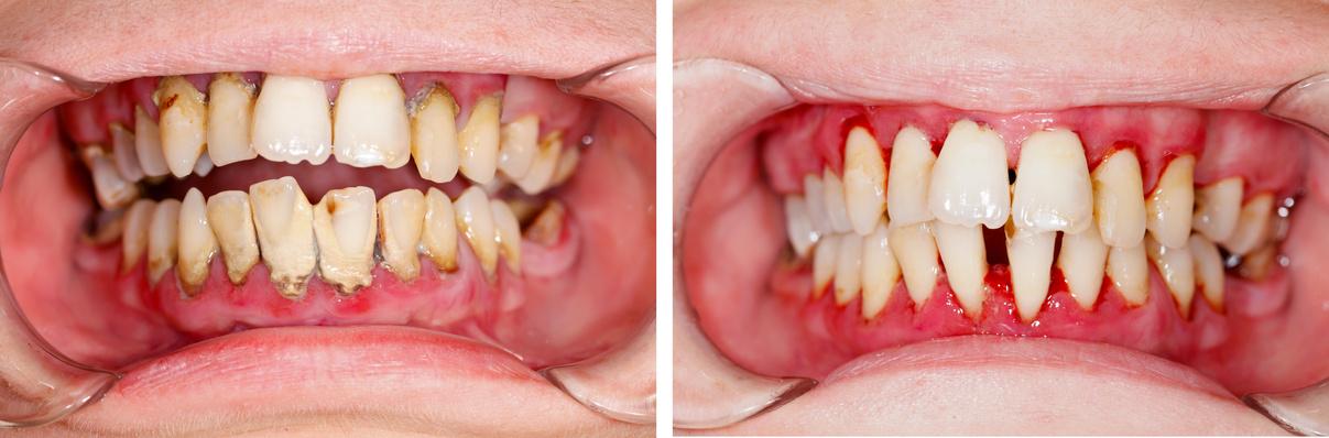 Die Zahnsteinentfernung (harte Beläge) ist nur ein Aspekt.