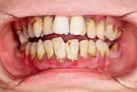 Ausschlusskriterium für offene Parodontitistherapie: nicht ausreichende Mundhygiene