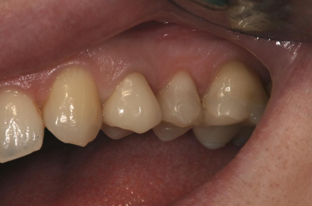 Gesundes Zahnfleisch: blassrosa und straff