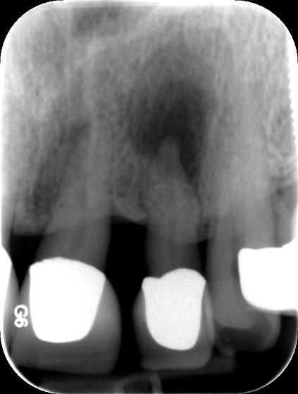 Abgestorbener Zahn mit apikale Osteolyse (Knochenauflösung an der Wurzelspitze)
