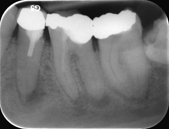2 tote Zähne mit nicht vollständiger Wurzelfüllung und Entzündungen