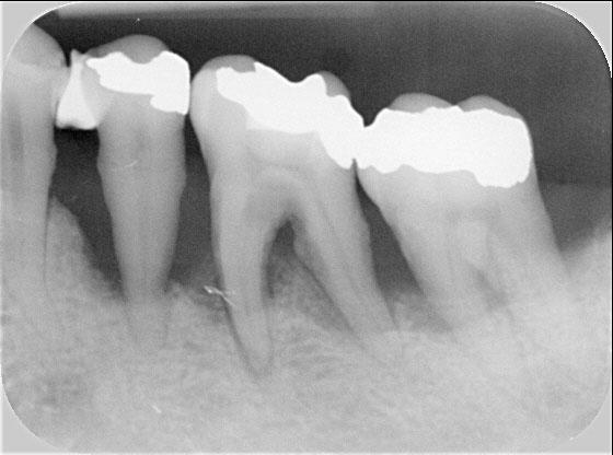 vertikaler Knochenabbau: Zahnverlust droht durch aggressive Parodontitis